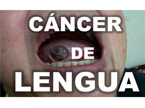CÁNCER DE LA LENGUA   YouTube