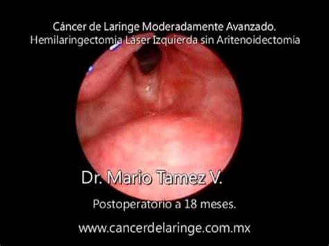 Cáncer de Laringe, Hemilaringectomía Láser   YouTube