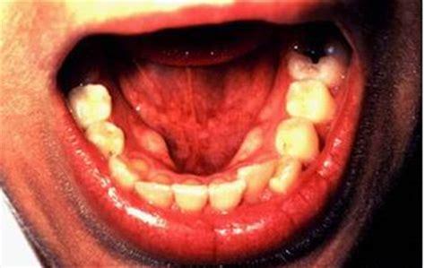 cancer de lengua: abril 2012