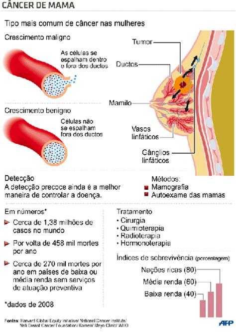 Câncer de mama: entenda o que é a mastectomia feita por ...
