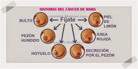 Cancer de mama sintomas dor | Oficina Da Moda