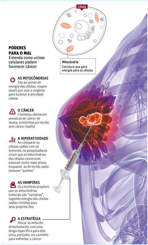 câncer de mama   ☻Mega Arquivo