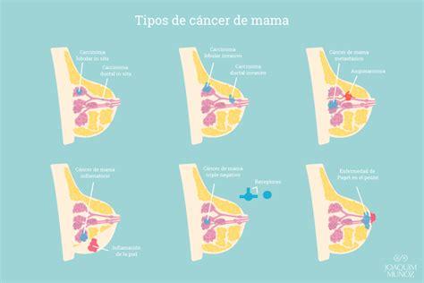 Cáncer de mama, tratamiento conservador o mastectomía | Dr ...