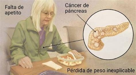Cáncer de páncreas: ¿Cómo reconocer los síntomas más ...