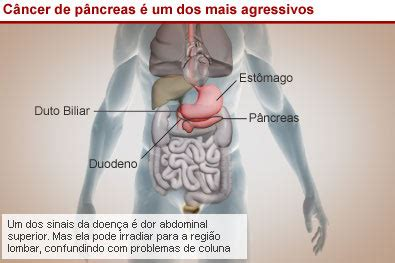 Câncer de pâncreas | Médico de Família
