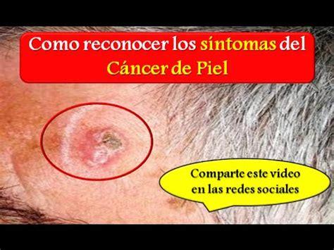 CANCER DE PIEL: Como reconocer los síntomas del Cancer de ...