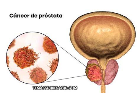 Cáncer de Próstata   9 Respuestas que Debes Conocer