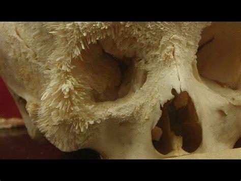 Cáncer de próstata, con metástasis a huesos   Doovi