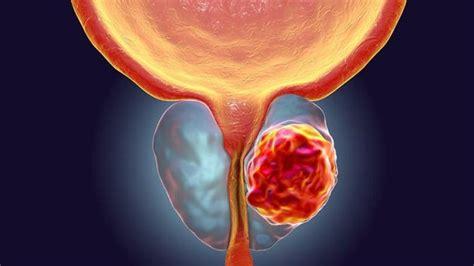 Cáncer de próstata: síntomas, chequeos y tratamientos   El ...