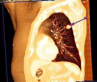 Câncer de pulmão – Wikipédia, a enciclopédia livre