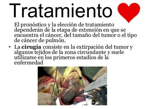 Cancer de pulmon 2