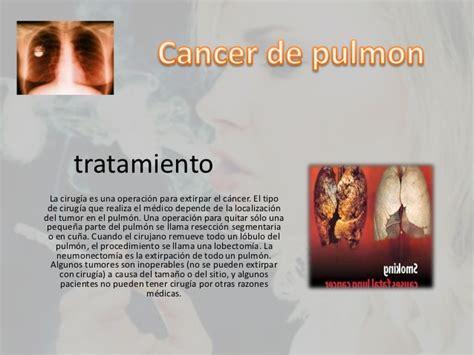 Cancer de pulmon alexandra