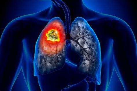 Cáncer de pulmón Causas, síntomas y tratamiento