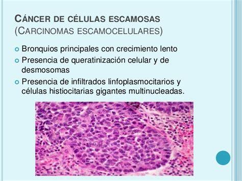 cancer de pulmon celulas pequeñas y no pequeñas tumores de ...