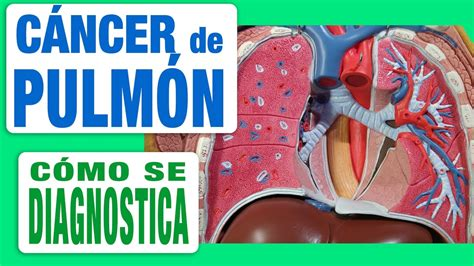 Cáncer de Pulmón   Diagnóstico   YouTube
