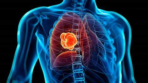 Cáncer de pulmón es altamente letal y difícil de ...
