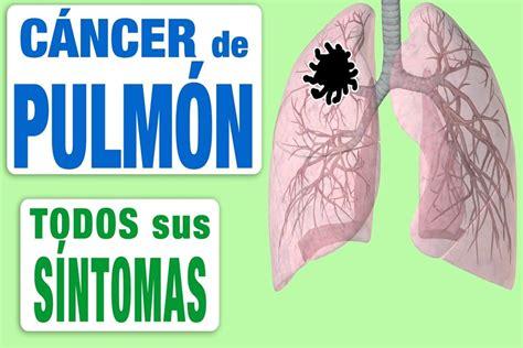Cáncer de pulmón: estudian cómo mejorar el diagnóstico ...