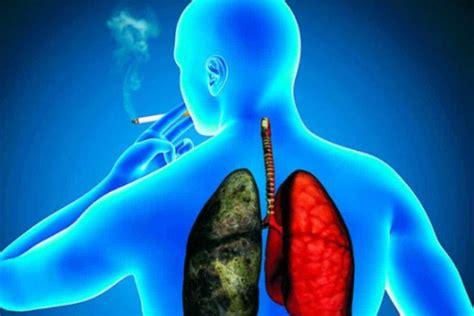 Cáncer de Pulmón: fisiopatología, síntomas, causas y más