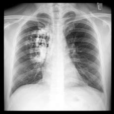 Cáncer de pulmón: MedlinePlus en español