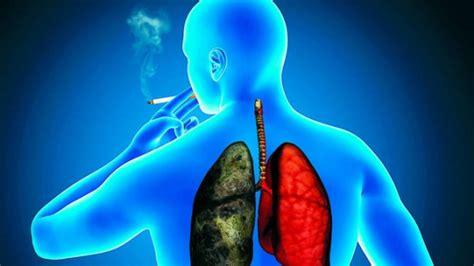 Cancer de pulmon sintomas iniciales que no debe ignorar ...