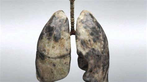 Cáncer de pulmón | Síntomas, tipos, detección, pronóstico ...