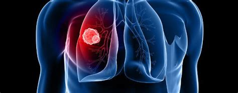 Cáncer de pulmón: síntomas y diagnóstico   Bekia Salud