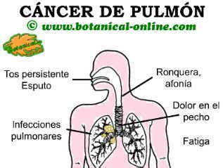 Cáncer de pulmón | SOS ALPAJÉS