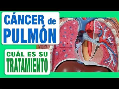 Cáncer de Pulmón   Tratamiento   YouTube