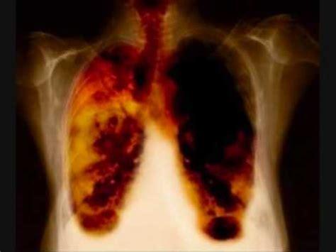Cáncer de pulmón   YouTube