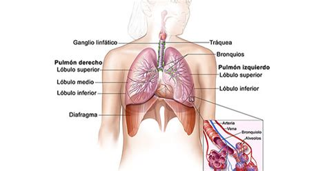 Cáncer de pulmón—Versión para pacientes   Instituto ...