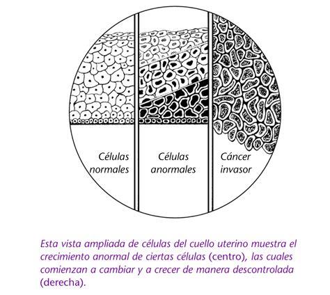 Cancer De Utero Primeros Sintomas   SEONegativo.com