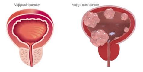 Cáncer de Vejiga, conoce más sobre esta enfermedad