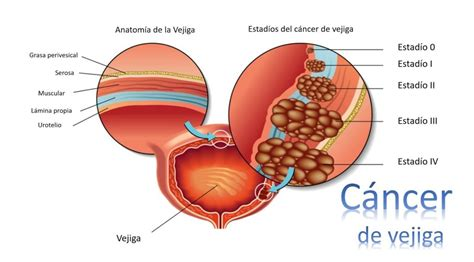 Cáncer de vejiga | Dr. Luciano Nuñez | Urología Oncológica