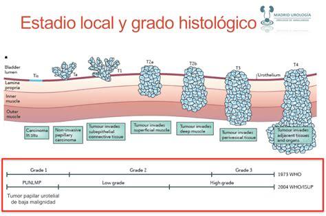 Cáncer de Vejiga. Histología 1. MU. Capítulo 2. | Urología ...