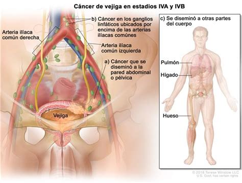 Cáncer de vejiga   National Cancer Institute