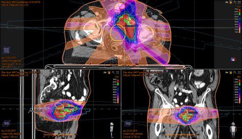 Cáncer de Vejiga — Radioterapia HM