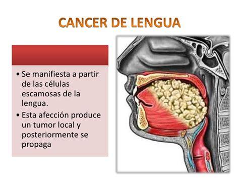 Cancer de vias aerodigesivas superiores