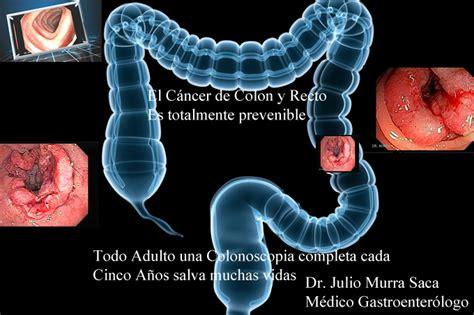 Cáncer del Colon   Notas Sobre Gastroenterología ...
