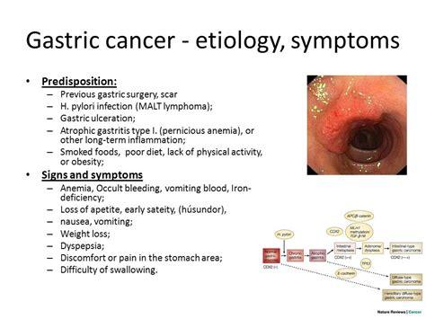 Cancer Gastrico Sintomas   SEONegativo.com
