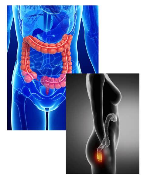 Cáncer gastrointestinal | Oncólogos en León Gto
