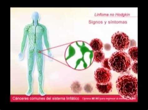 Cancer Linfatico. Alejandro Gaviria recibirá tratamiento ...
