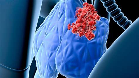 Cáncer linfático: conoce sus síntomas y tratamiento