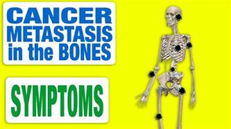 Cancer Metastasis in the Bones   All Symptoms   YouTube