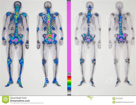 Cancer Metastasis Royalty Free Stock Images   Image: 35767539