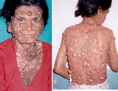 Cáncer o tumores malignos | Centro de Medicina ...