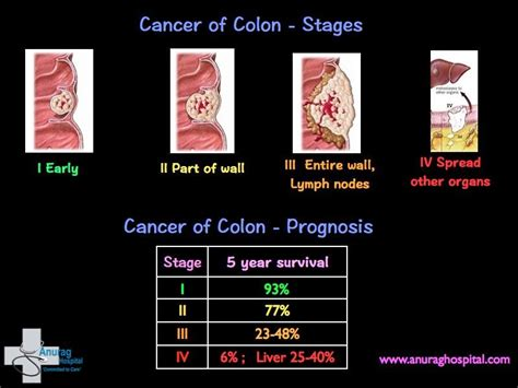 Cancer of Colon   Anurag Hospital