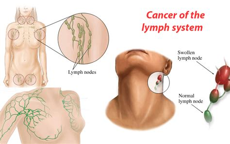 Cancer of the lymph system   Symptoms and Treatment ...