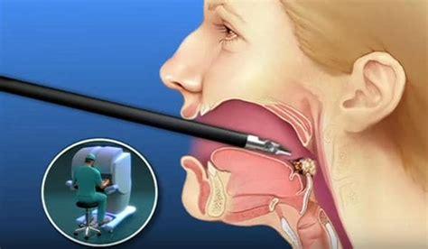 Cáncer oral  boca y garganta    Causas, síntomas, TODA la ...