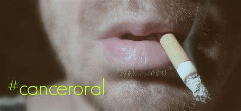 Cáncer oral, causas, síntomas y tratamientos