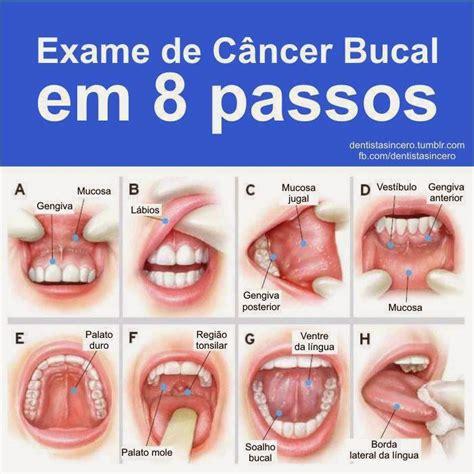 CANCER ORAL O BUCAL: CANCER ORAL O BUCAL